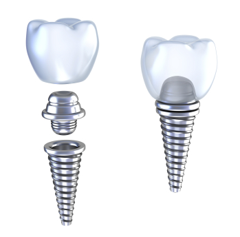 Diagram of dental Implants by dentist in Bend, OR.