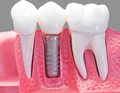 a model of a dental implant from Aesthetic Dentistry of Bend