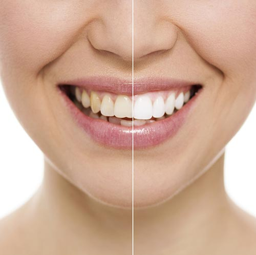 Teeth Whitening at Aesthetic Dentistry of Bend